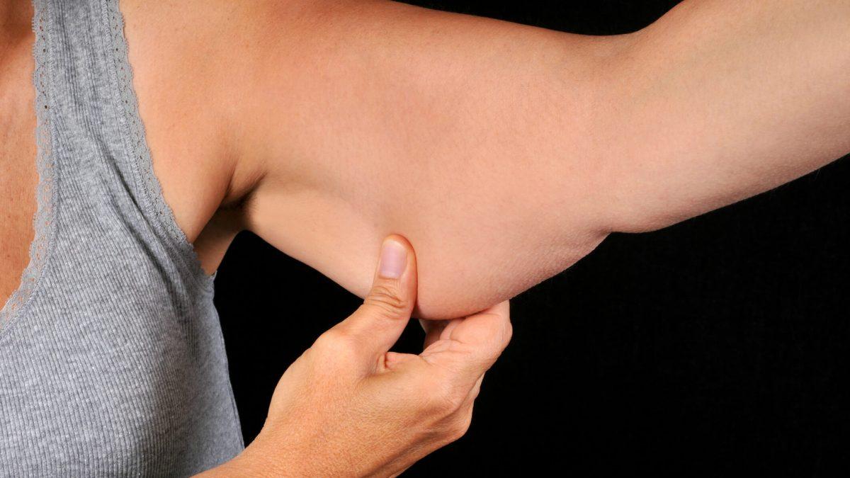 Braquioplastia axilar: entenda como funciona essa cirurgia
